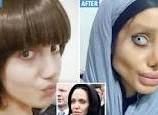 Aksi Nekat Wanita Ini Rela Operasi Plastik Sebanyak 50 Kali